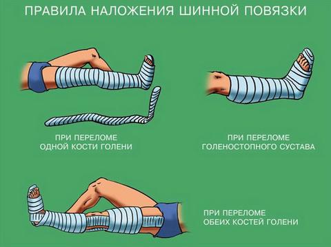 Шинная повязка при переломе